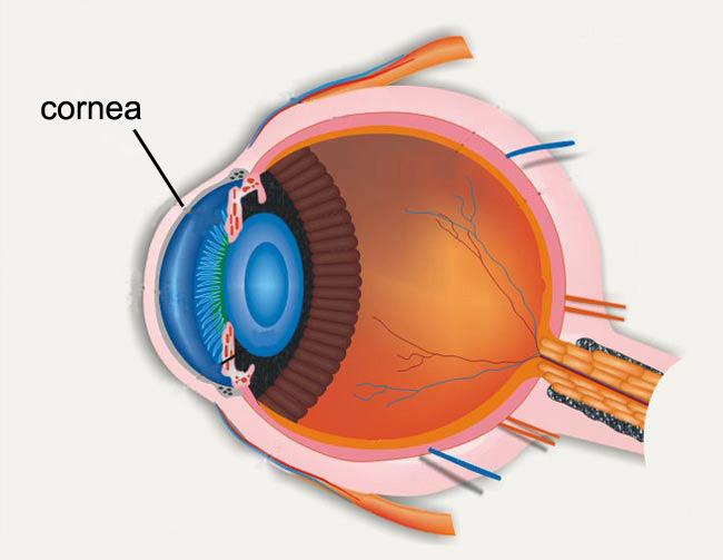 Cornea Treatment