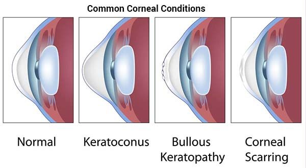 Corneal Collagen Cross Linking (C3R) Treatment
